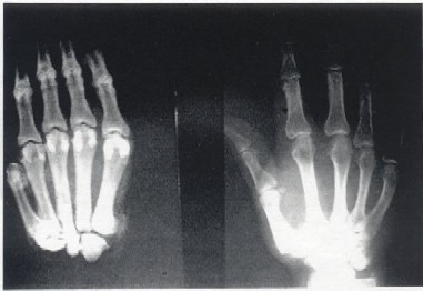 Biscardi X-Ray